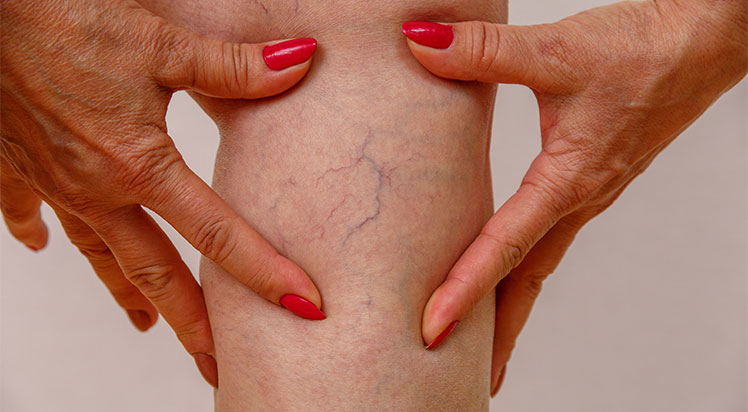 News, What are varicose veins