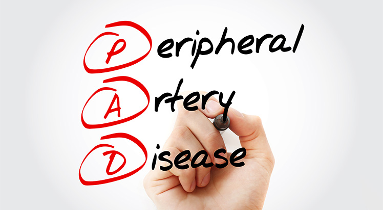 News What is Peripheral Artery Disease, PAD, What is PAD